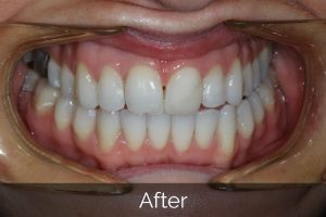 Image of teeth after Invisalign straightening treatments