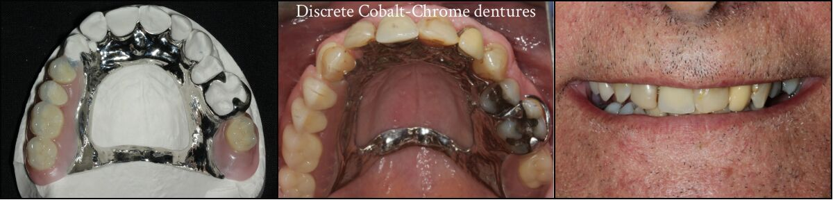 Discrete cobalt chrome dentures - photo of them out of mouth and in place