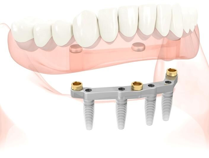 Implant retained denture diagram