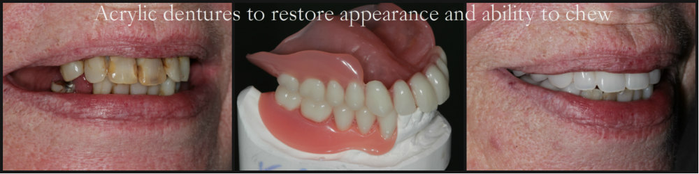 Acrylic dentures photo of before and after treatment