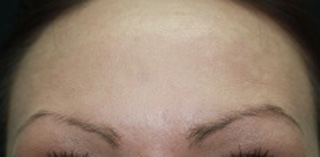 Facial rejuvenation botox after photo