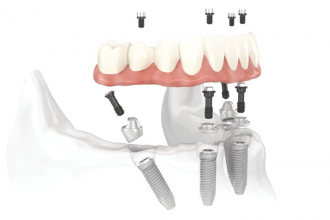 All on 4 Implant System
