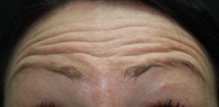Facial rejuvenation forehead before photo