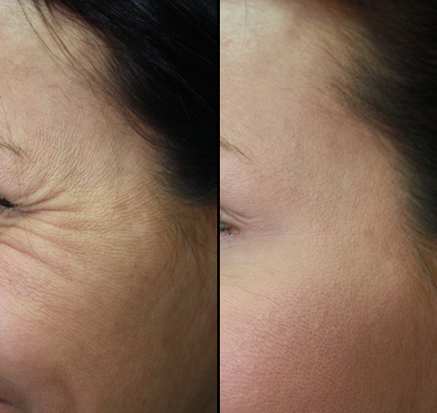 Facial rejuvenation eye treatment before and after photos