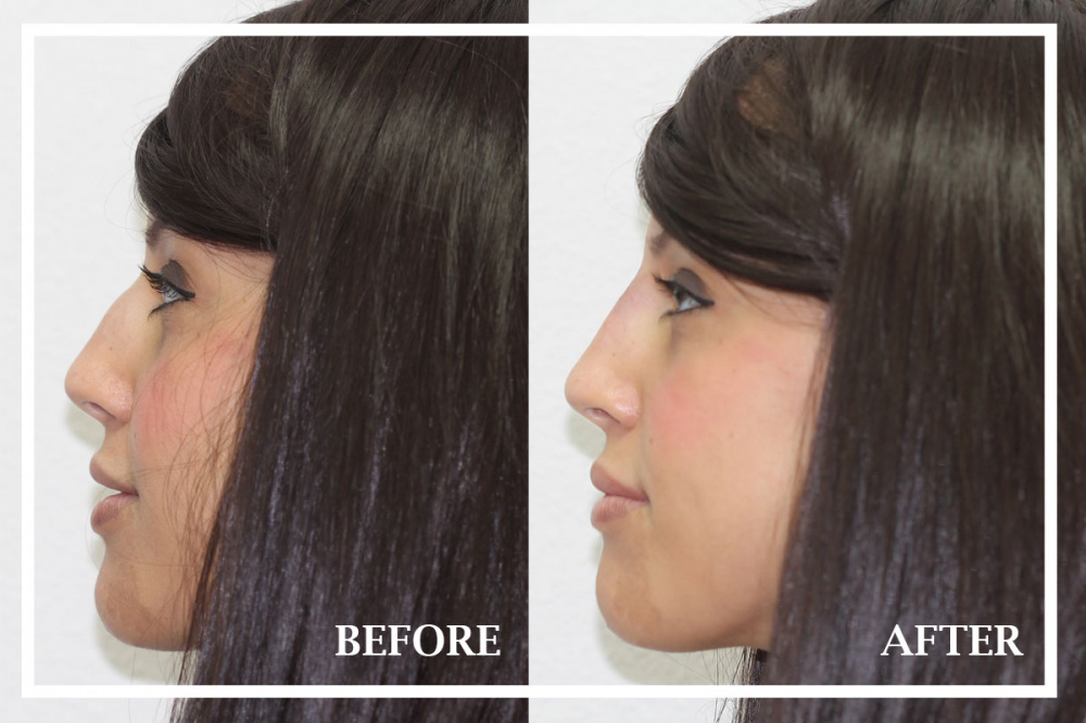 15 minute nose job, before and after examples